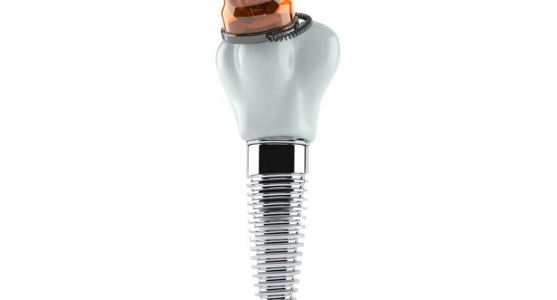 dental implant dangers