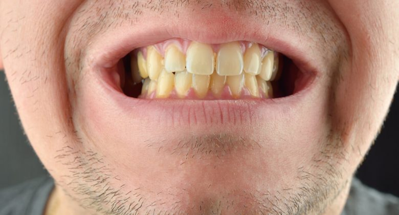 are yellow teeth normal