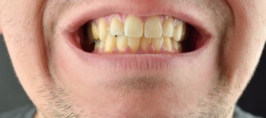 Are yellow teeth normal?