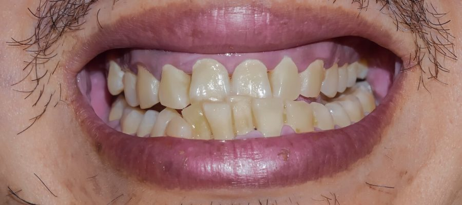 tooth erosion treatment