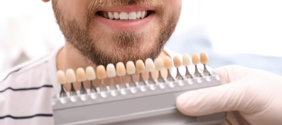 Reasons Why do people get Veneers?