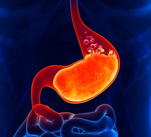best probiotic for acid reflux