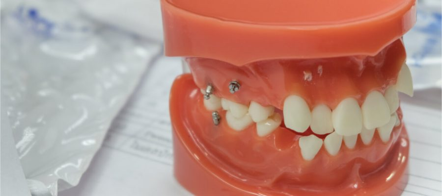mini dental implant cost
