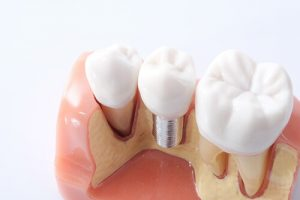 pros and cons of dental implants vs bridges