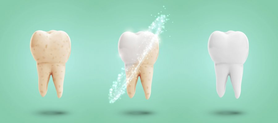 remineralize tooth decay
