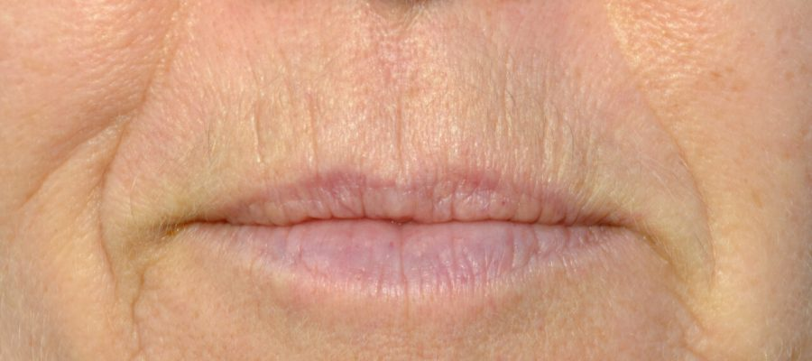 Easy wrinkle treatments around mouth