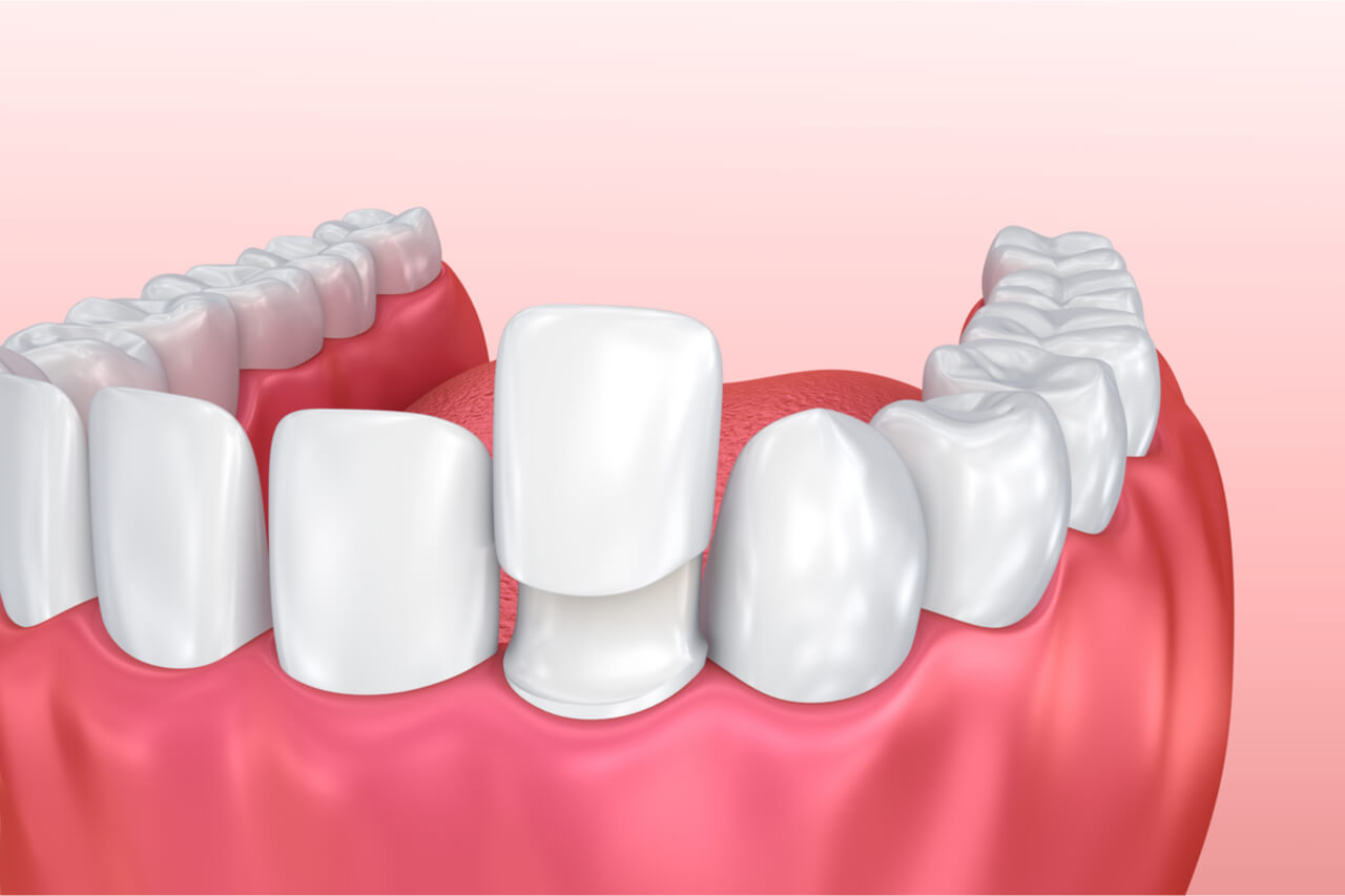 What are the Porcelain Veneers Pros and Cons?