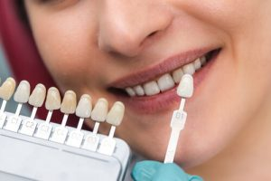 Choosing Perfect Smile Veneers Reviews
