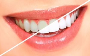 cost to get teeth whitening