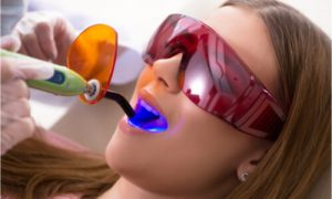 The dentist uses UV light to complete the dental whitening treatment.