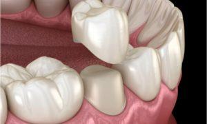 animated teeth crown