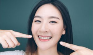 Retainers are necessary to keep teeth in their proper position.